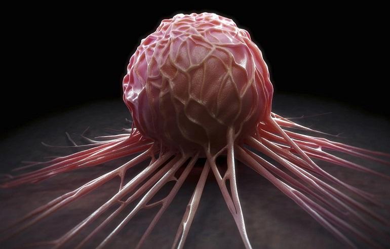 Онколог Минздрава назвал главные факторы развития рака