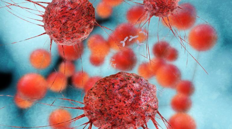 Минздрав: россияне стали чаще страдать от онкологии