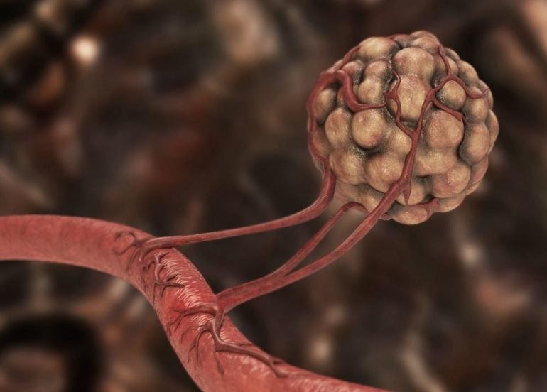 Ученые считают, что раком можно заразиться