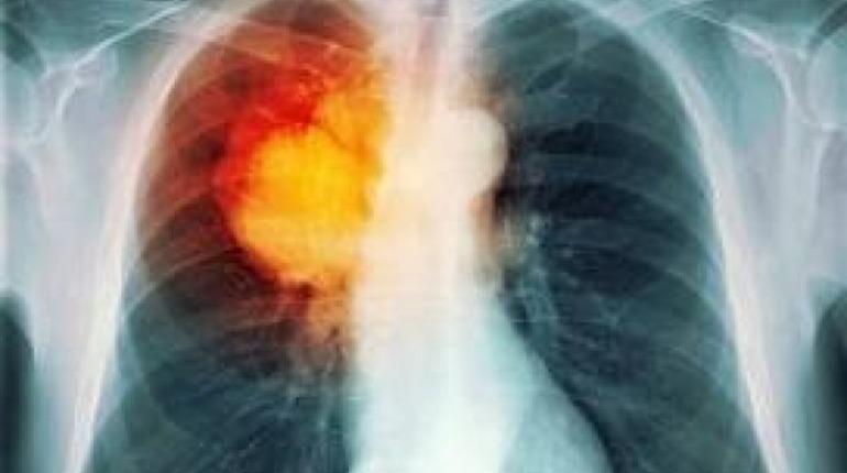 В России научились выявлять рак легких с помощью нейросети. Фото: pixabay.com