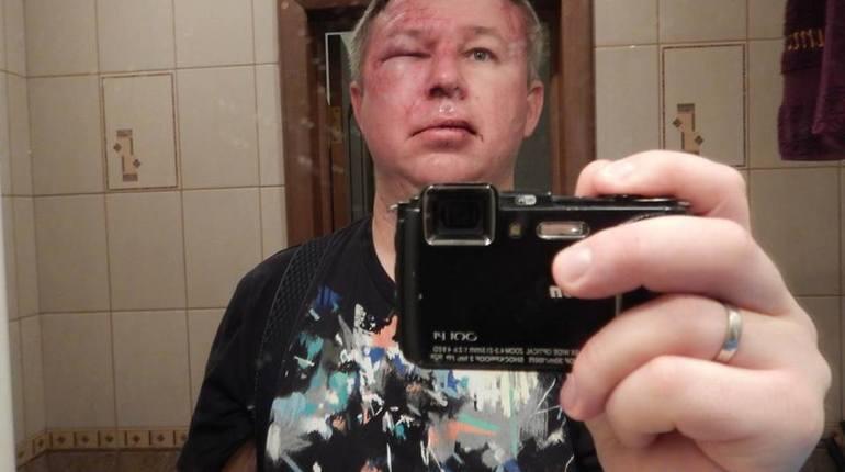 В Петербурге четверо мужчин избили правозащитника Динара Идрисова