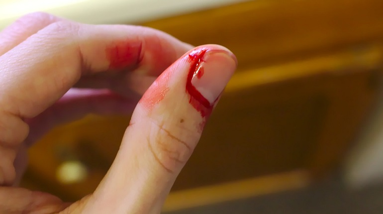 Пьяная жительница Колпино решила разнять ссору прохожих ножом