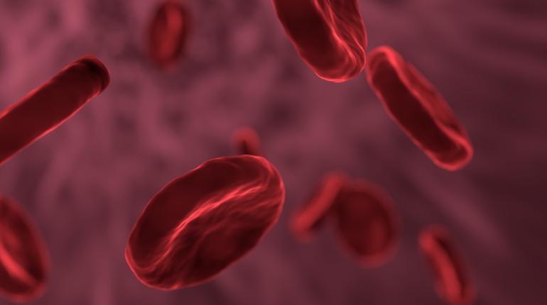 Высокий уровень тромбоцитов в крови может стать предвестником онкологии