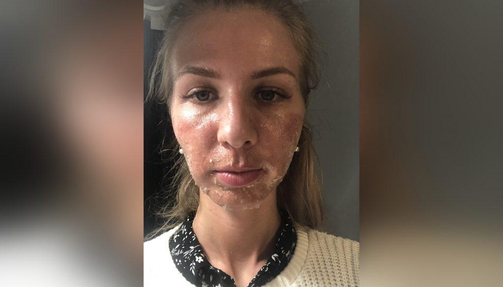 Петербурженка получила ожоги II степени после посещения солярия в Мурино