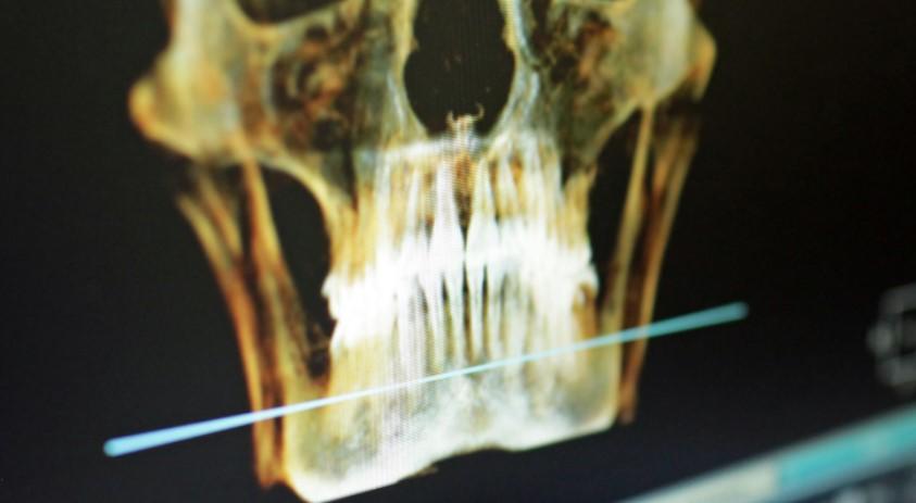 Ученые нашли способ вырастить новые зубы