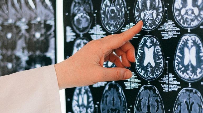 Как справиться с йододефицитом, который приводит к умственной отсталости и кретинизму